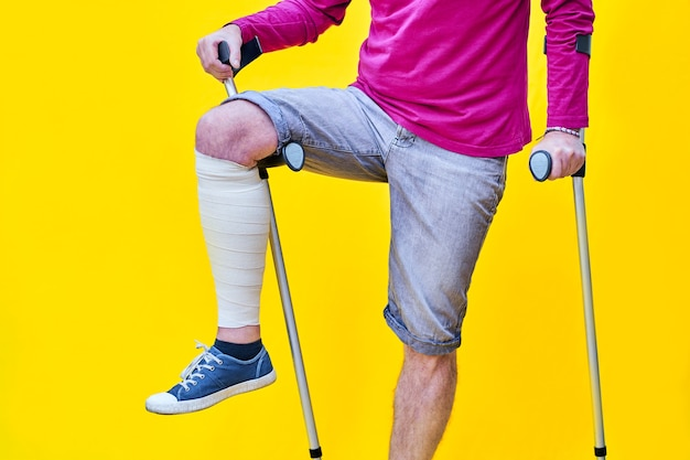 Unrecognizable man wearing purple t-shirt shorts and on crutches, with one leg bandaged and leaning on a crutch.