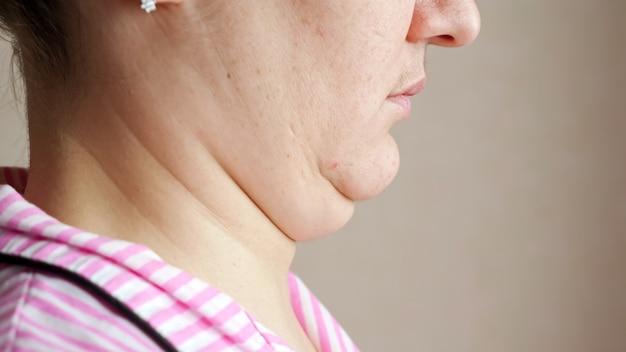 알아볼 수 없는 여성이 이중 턱을 만지고 마사지합니다.
