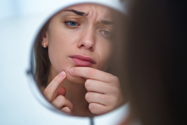 Upset stressed sad acne woman with problem skin squeezes pimple at home using a small round mirror