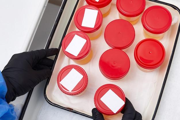 実験室での尿分析。医療用尿検査。実験室分析用の尿サンプル。