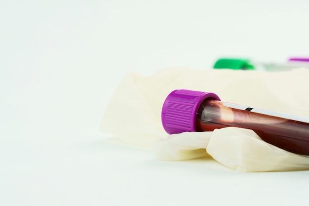 収集および血液サンプル用の真空管、注射器、白い背景の手術用手袋。紫と緑の蓋が付いた透明なチューブ。データを識別するためのラベル。セレクティブフォーカス。