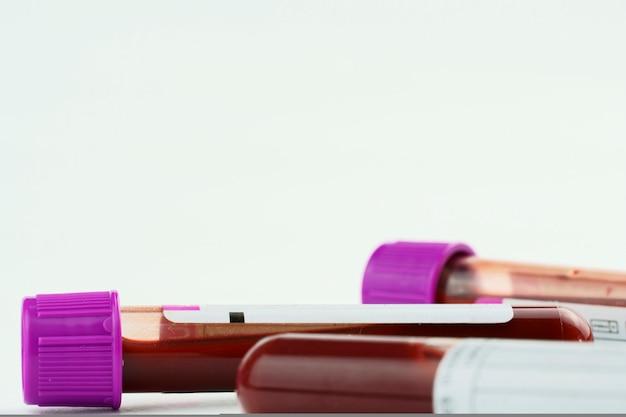 수집 및 혈액 샘플용 진공관 및 배경 선택적 초점에 격리된 주사기