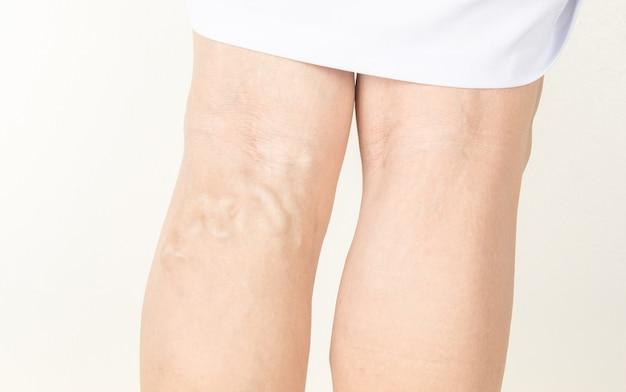 Varicose veins in old women