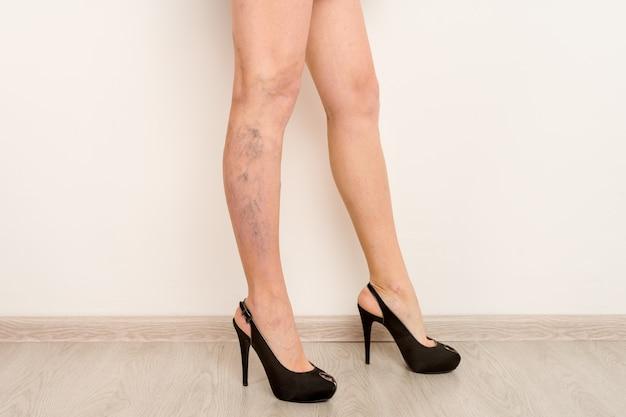 Варикозное расширение вен на стройных женских ножках. флебология
