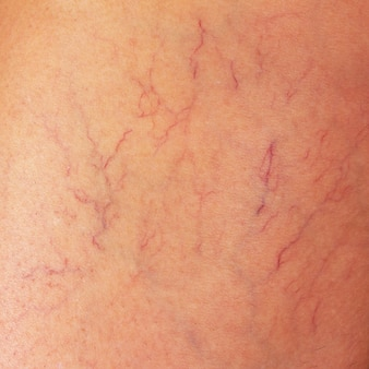 Varicose veins on the thigh of a woman close up