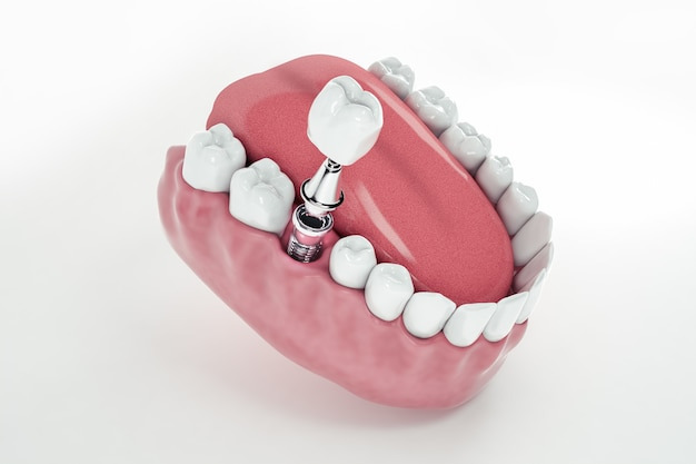 View from above of a false tooth implant fixed in the jawbone; 3d; 3d illustration