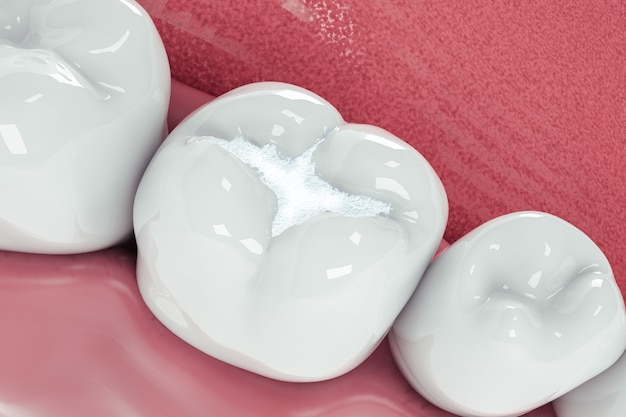 View from above of a filling in a tooth due to a cavity; 3d; 3d illustration