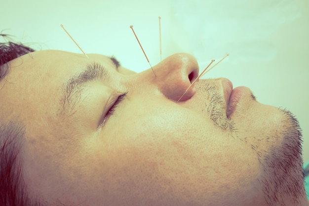 Vintage style photo of asian man is receiving acupuncture treatment
