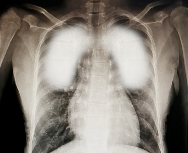 Virus destroys human lungs the inflamed a radiograph. coronavirus concept