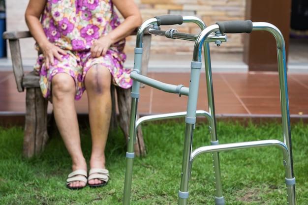 Рамка ходунка для женщины с операцией на ноге