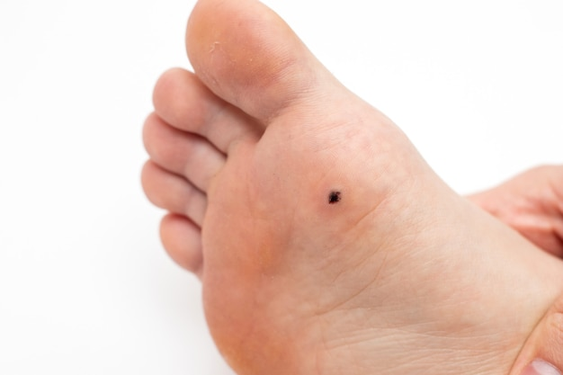 Wart on the sole of the foot. removal of a plantar wart.