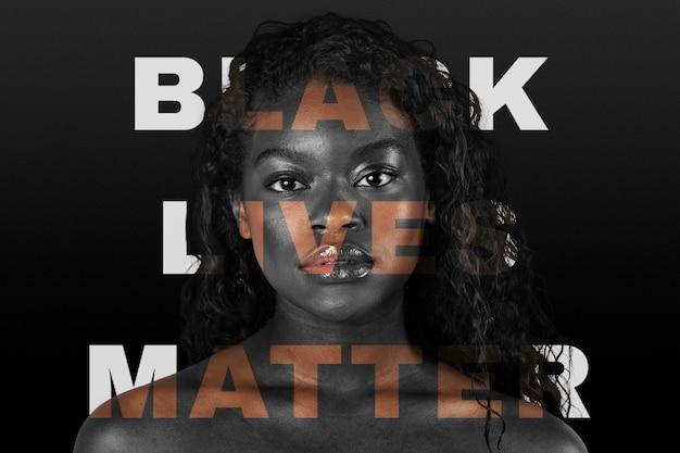 우리는 흑인 생명 문제 운동을 지원합니다