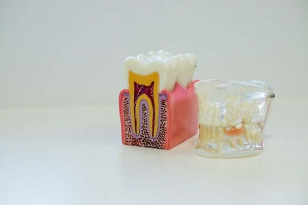 White teeth model and tooth model without caries on white background.