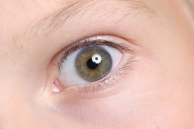 Wide open child's eye with an eyebrow and moles on skin.