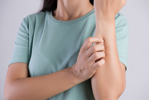 Woman arm scratch the itch by hand at home. healthcare and medical concept.
