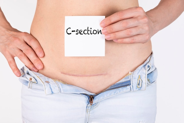 Woman belly with scar and caesarean section text on white sticker