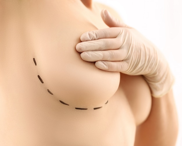 Woman breasts plastic surgery marker line mark