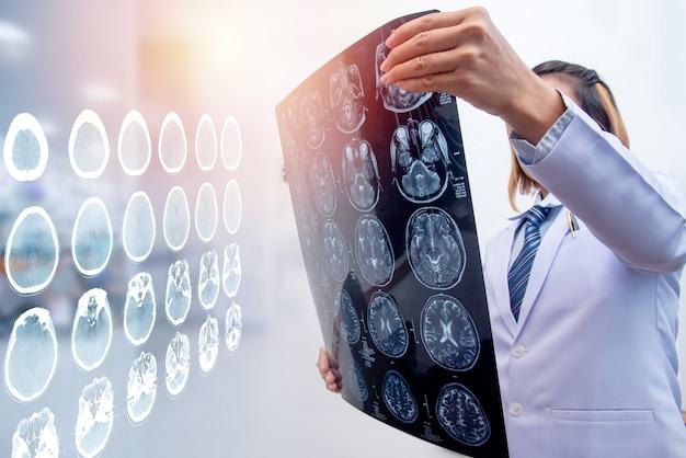 脳スキャンの二重露出で脳の損傷領域を診断するためにmriフィルムを保持している女性医師