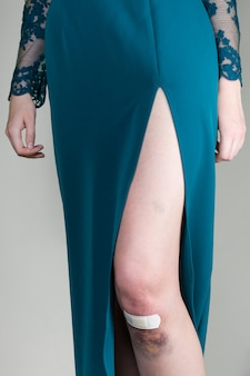 Woman in evening dress with bruised injured knee