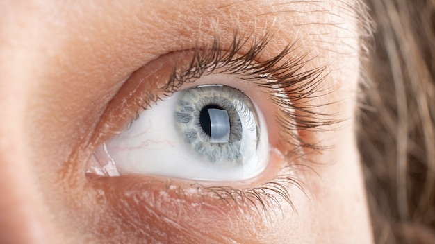 Woman eye with corneal dystrophy keratoconus thinning of the cornea