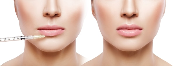 Woman getting injection on lips. before and after the procedure