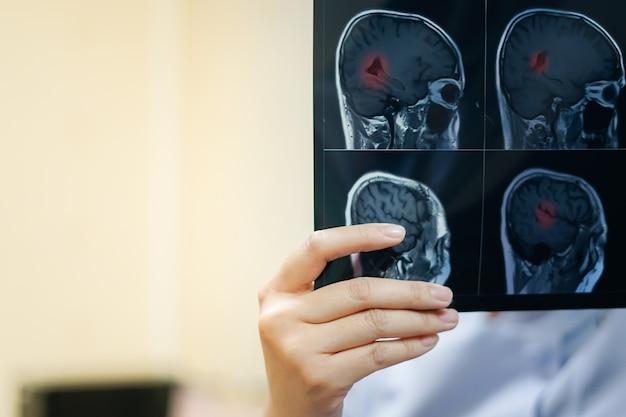 Женщина-рука (радиолог), держащая мозговой фильм мрт, чтобы увидеть диагностику и отчет. медицинский c