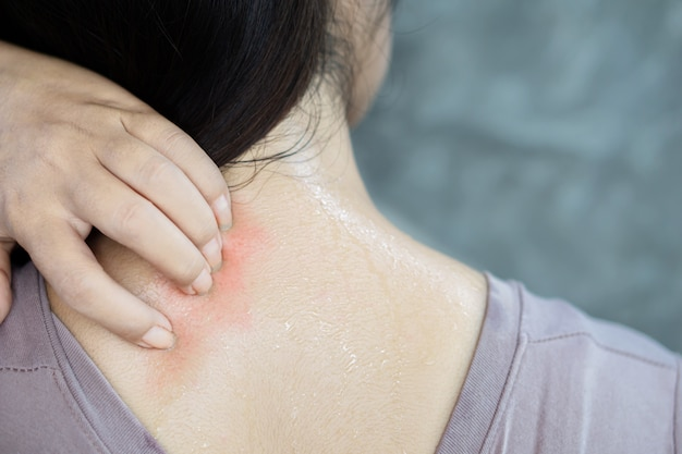 Woman hand scratching sweat skin allergy to the weather