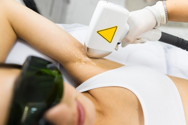 Woman has armpit hair removed with a laser