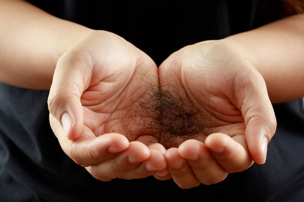 A woman has a lot of hair loss, she has a problem with her hair and scalp.