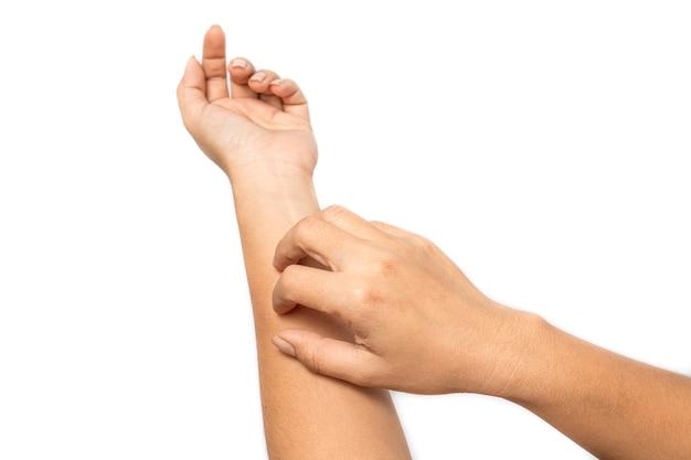 女性は腕に皮膚の発疹のかゆみがあります