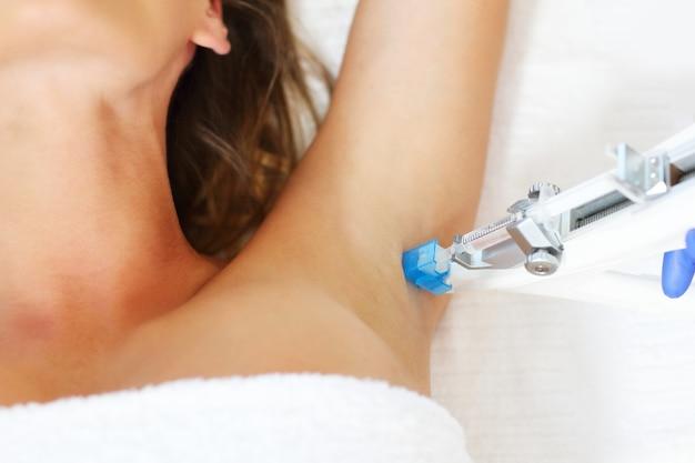 Женщина, имеющая мезотерапию подмышек против пота в салоне красоты