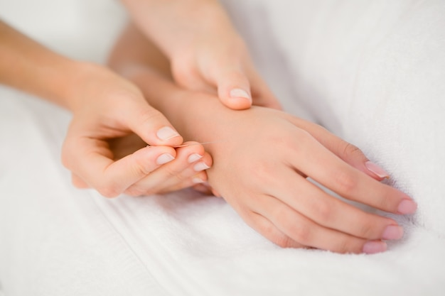 Woman holding a needle in an acupuncture therapy