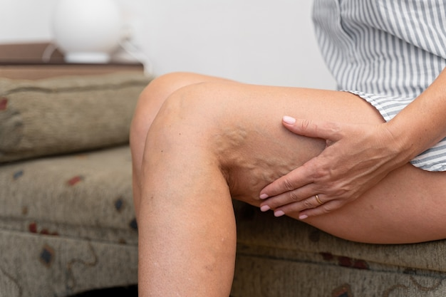Woman at home with varicose veins.