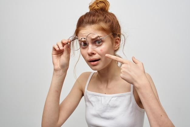 그녀의 얼굴에 안경 여드름과 흰색 티셔츠에 여자