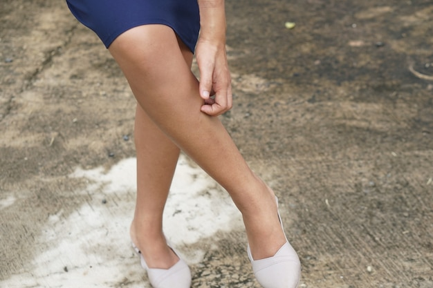 Женщина зудит кожа на ноге