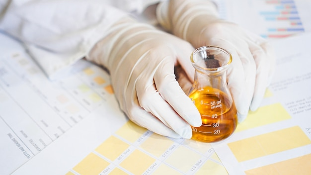 실험실에서 ph 물질로 소변 검사를 하는 여자. 의료 사무실에서 장갑을 낀 여성의 손과 소변 플라스크