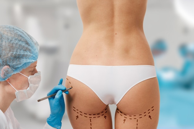 Woman marked out for cosmetic surgery