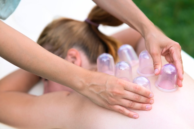 Woman masseur doing massage with vacuum cups on back outdoors. cupping treatment at spa. traditional chinese medicine.