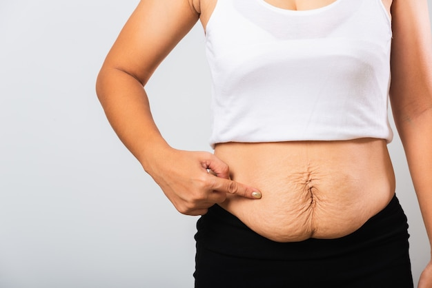 Woman pointing stretch mark loose lower abdomen skin