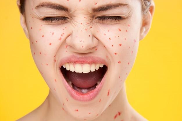 У женщины сыпь и воспаление лица, прыщей и ветряной оспы