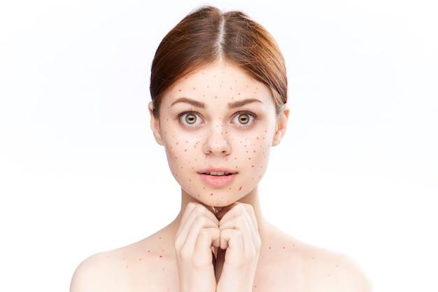 Женская сыпь и воспаление лица, угри и ветряная оспа