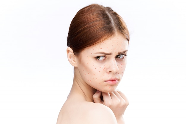 Premium Photo | Woman rash and inflammation of the face, acne and chickenpox