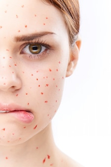 Woman rash and inflammation of the face, acne and chickenpox