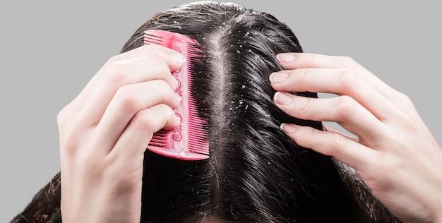 女性は黒い髪の櫛からフケを削除します