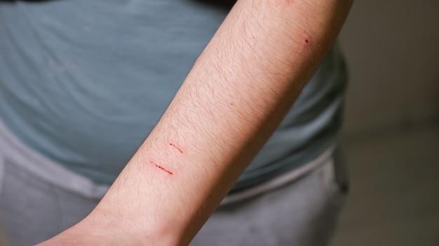 Кошка поцарапала руку женщины