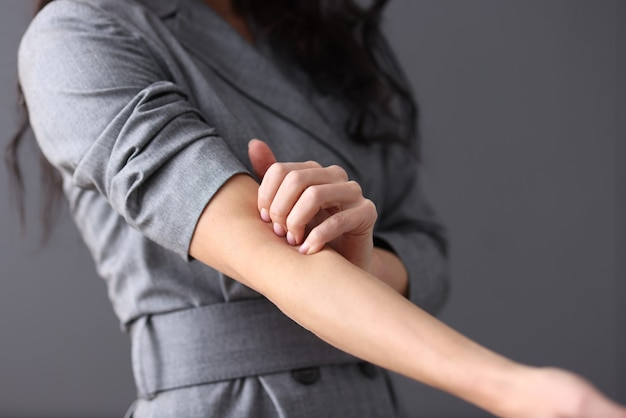 Woman scratches her hand manifestation of neuroses concept