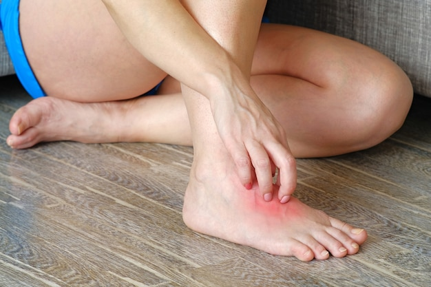 A woman scratches an inflamed spot on her leg. lichen on the leg on a red background.
