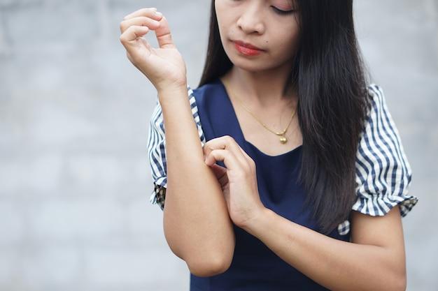 Женщина чешет руку от зуда