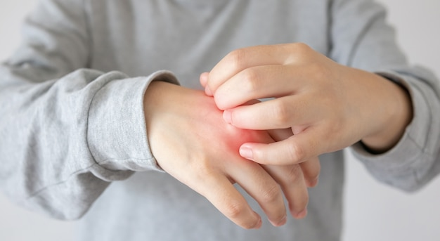 Woman scratching her hand close up