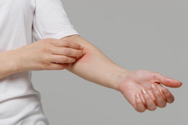 그녀의 손에 가려움을 긁는 여자. 건성 피부, 동물 / 식품 알레르기, 피부염